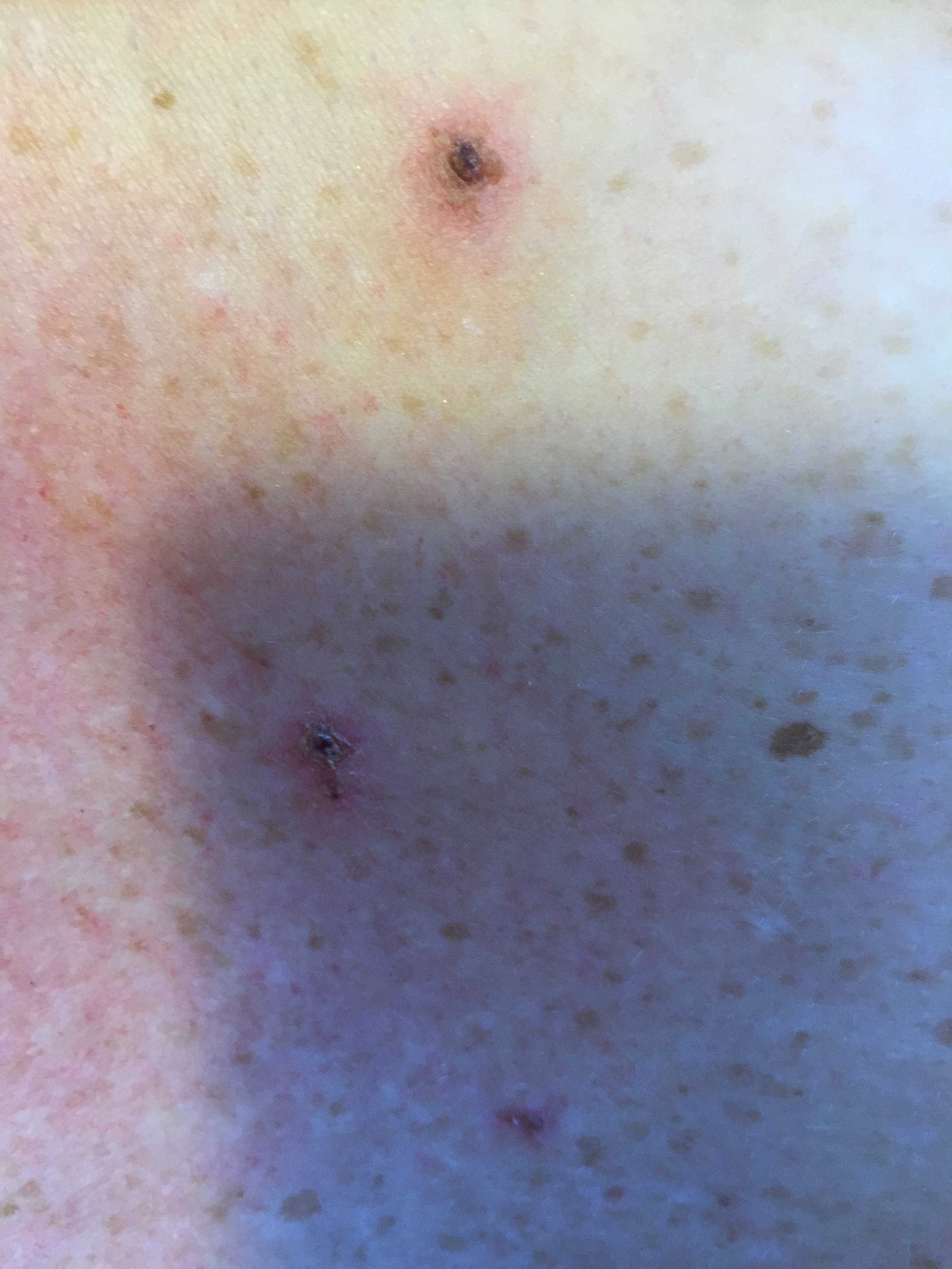 morgellons disease Read about the causes, symptoms, and treatment of morgellons disease, a little-known disorder also referred to as fiber disease or skin crawling disease.