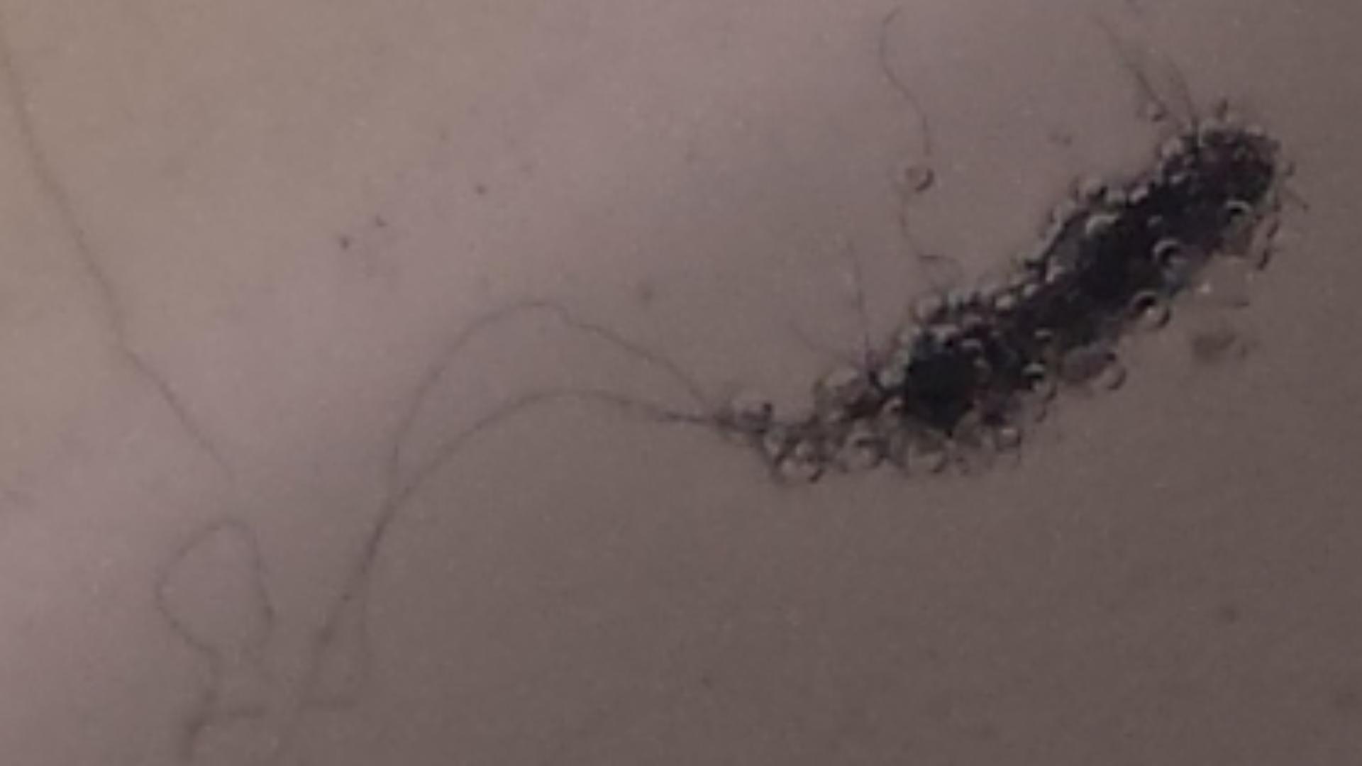 Morgellons Disease 2019