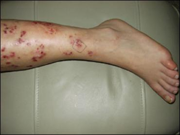 Meth Bugs Under Skin http://sci.rutgers.edu/forum/showthread.php?t=115836
