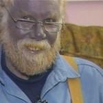 Paul Karason – The Man With Blue Skin