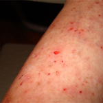 Effective Treatments for Morgellons Disease